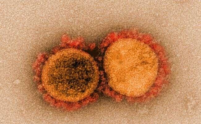 Inflammatory bowel disease biologic blunts immune response to COVID-19 thumbnail