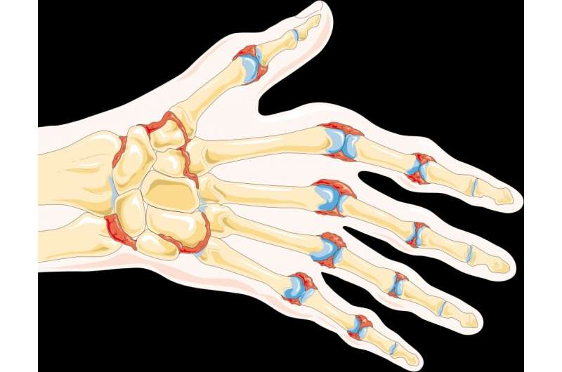 Study finds inflammatory mechanism responsible for bone erosion in rheumatoid arthritis