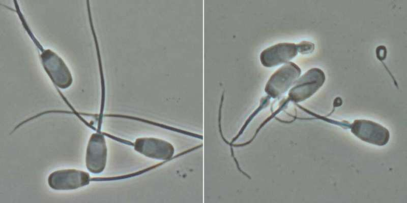 Unusual mutation causes defective sperm in boars