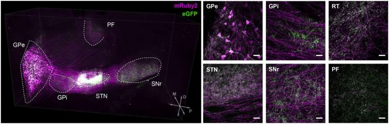 Study identifies two neuronal populations associated with symptoms of Parkinson's disease