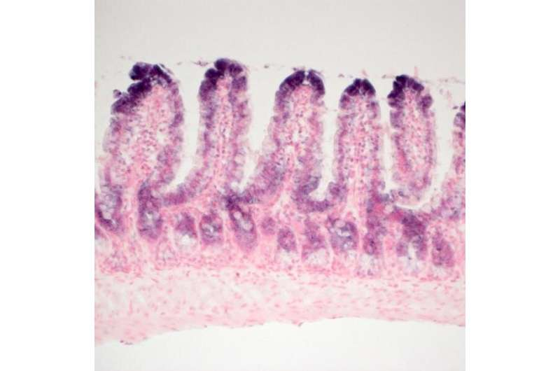 14-3-3sigma gene acts as a tumor suppressor in intestinal cancers