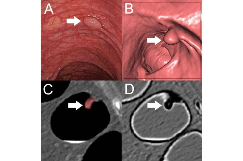 Machine learning method identifies precancerous colon polyps