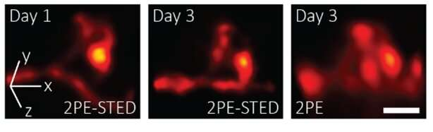 Researchers capture first 3D super-resolution images in living mice