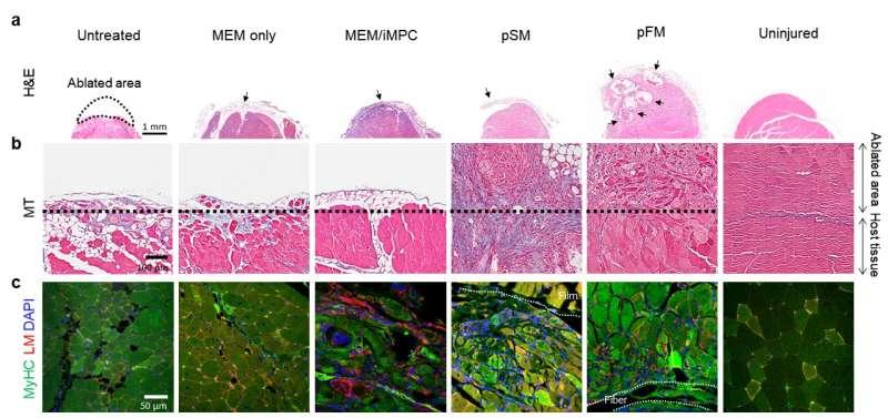 Bioengineered hybrid muscle fiber for regenerative medicine