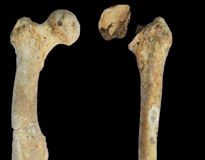 Rare diseases in the Bronze Age