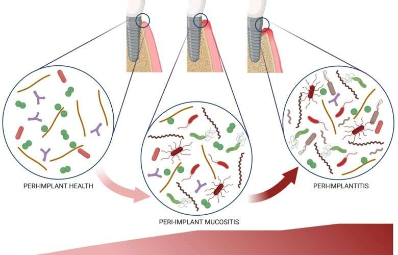 Researchers investigate the triggers of peri-implantitis