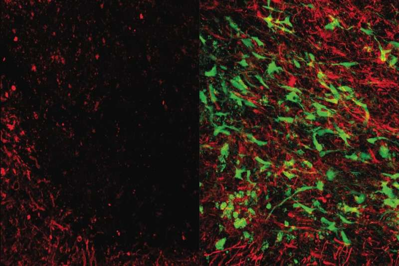 Stem cell therapy promotes recovery from stroke and dementia in mice