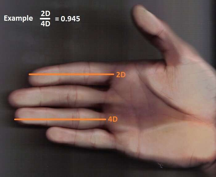 2D:4D ratio is not related to sex-determined finger size differences in men and women
