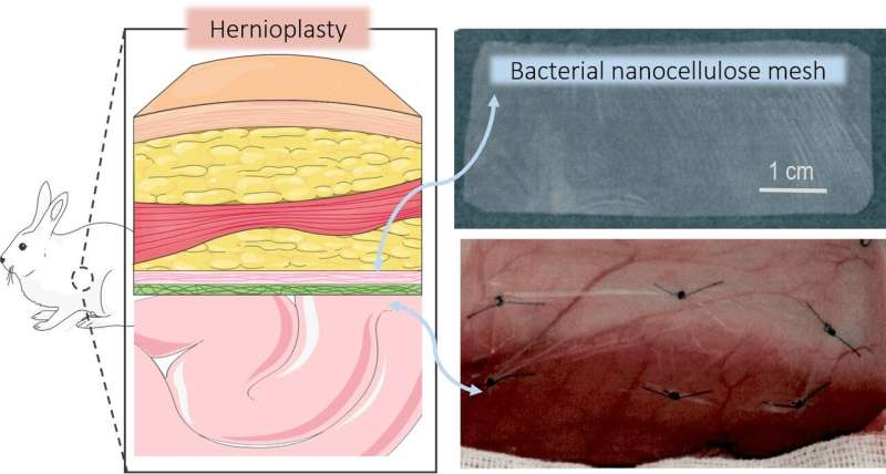 Bio-nanocellulose meshes improve hernia repair surgery
