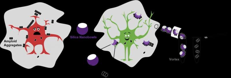 Nanoparticles help untangle Alzheimer's disease amyloid beta plaques