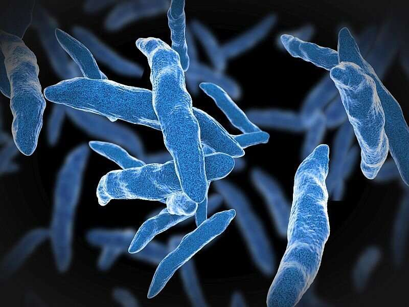 Tuberculosis cases largely declined across united states in 2020