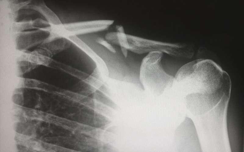 Unlocking the mystery behind skeletal aging