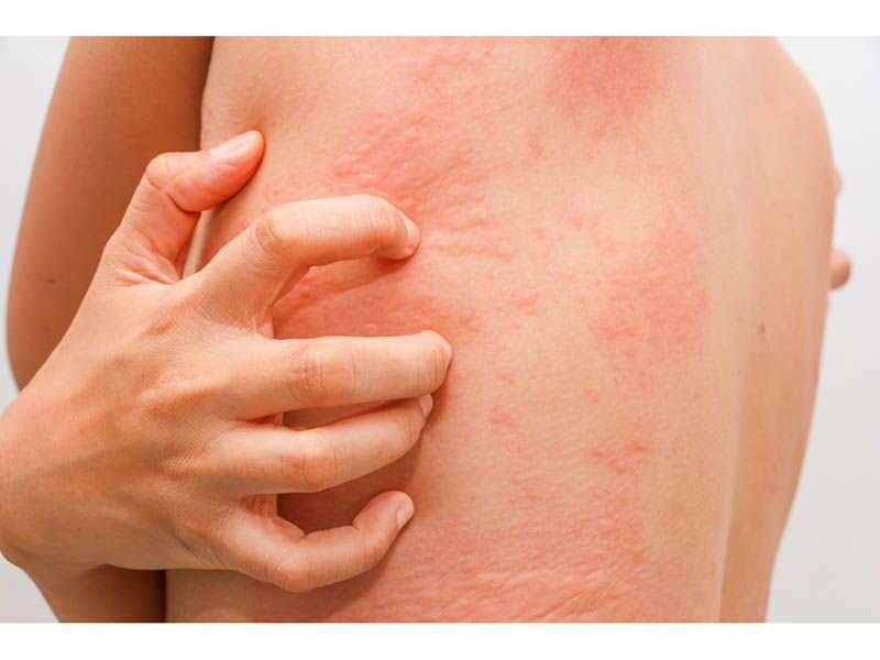 Children with worse atopic dermatitis more likely to have learning disabilities