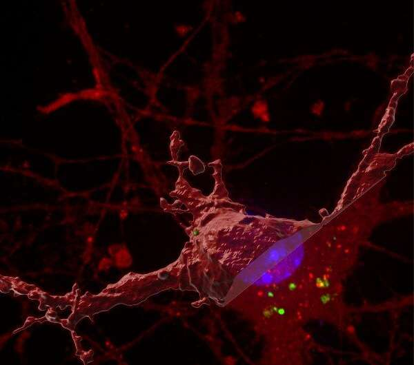 New discovery for how the brain 'tangles' in Alzheimer's disease