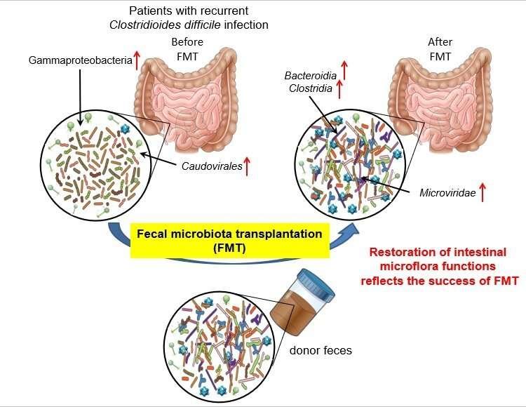 Scientists reveal mechanism behind fecal microbiota transplantation