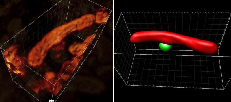 Brain cell molecules shown in first-ever nanoscale 3D images of whole living cells