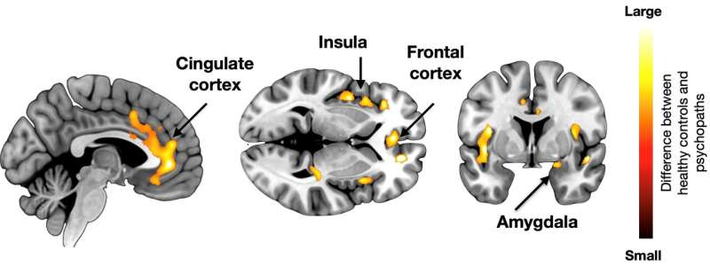 New study reveals brain basis of psychopathy