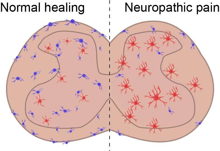 Scientists find new cell type implicated in chronic pain, inflammation