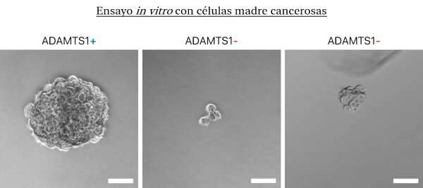 Scientists demonstrate the role of a protein called ADAMTS1 in rare eye cancer