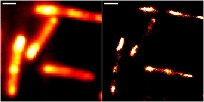 Super-resolution RNA imaging in live cells