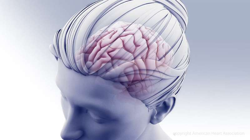 Immediate angiography may reduce stroke treatment time, improve recovery, lower disability
