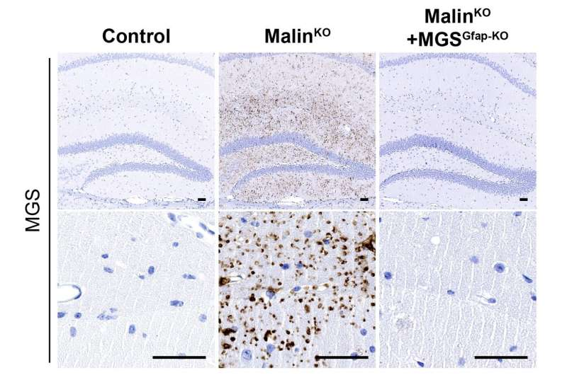 Scientists discover the cause of neurodegeneration in Lafora disease