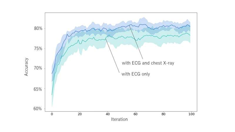 Newly developed AI uses combination of ECG and X-ray results to diagnose arrhythmic disorders
