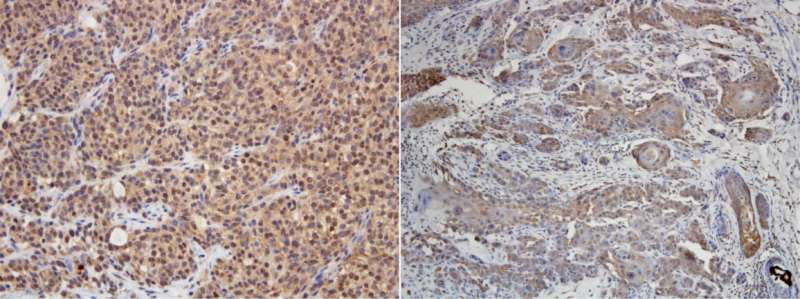 New therapy target for malignant melanomas in dogs