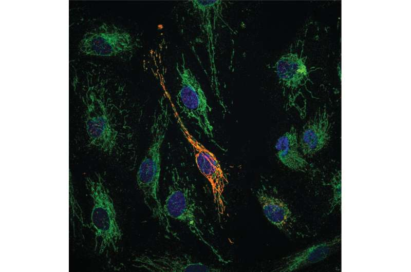 Newly-discovered molecule provides dual protection against vascular inflammation