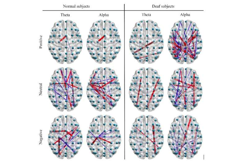 A new model to recognize emotions in deaf individuals by analyzing EEG signals