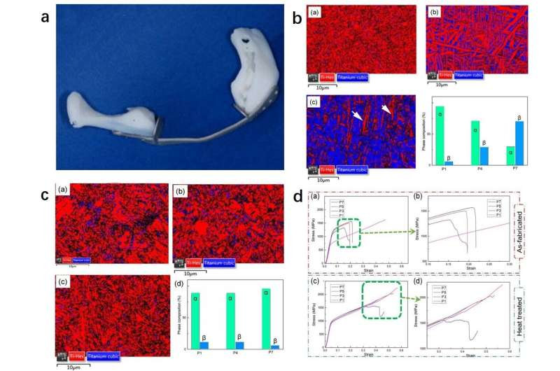 A novel method for controlling the microstructure and performance of 3D printed human implants