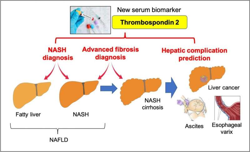 A simple blood test to identify patients at risk of nonalcoholic fatty liver disease