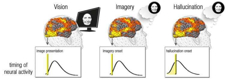 A brain mechanism underlying 'vision' in the blind is revealed thumbnail