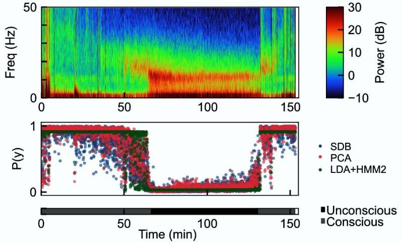 Algorithms show accuracy in gauging unconsciousness under general anesthesia