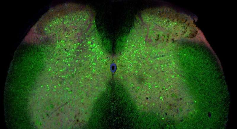 ALS development could be triggered by loss of network connections in the spinal cord