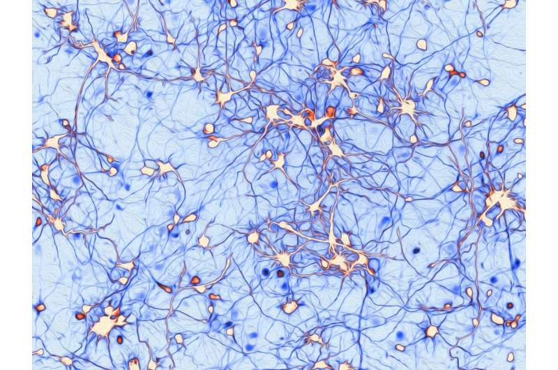 An astounding find reveals a rare cause of epilepsy