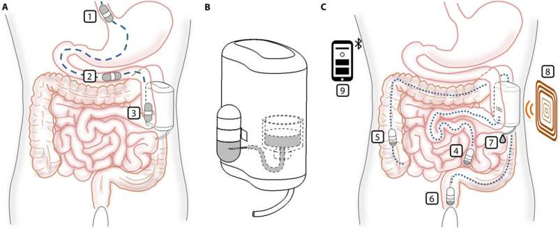 An implantable device for delivering insulin that can be refilled by an ingestible capsule
