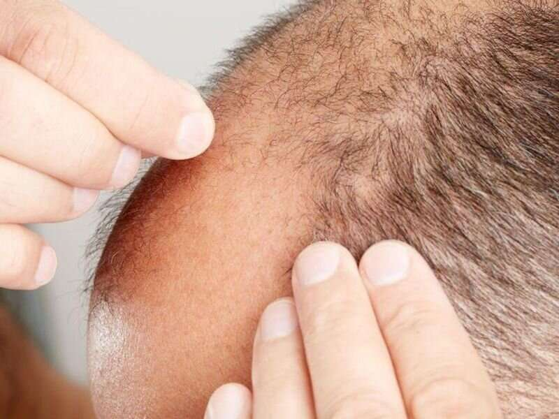 Androgenetic alopecia may reduce health-related quality of life