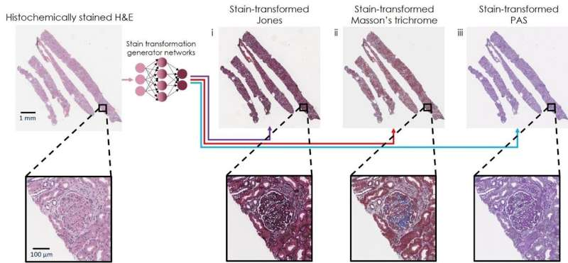 Artificial Intelligence Re-stains Images of Tissue Biopsy with new Stains, Improving Accuracy of Diagnoses