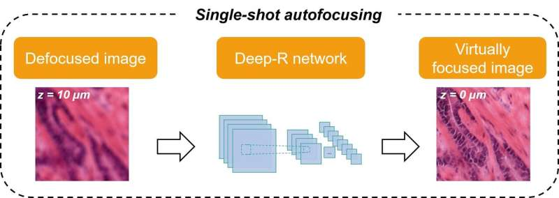 Autofocusing of microscopy images using deep learning