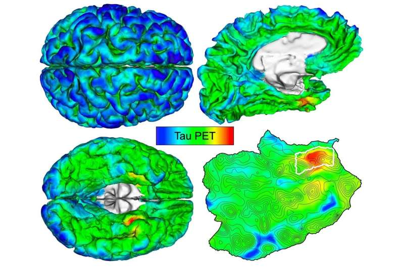 Automated imaging detects and tracks brain protein involved in Alzheimer's disease