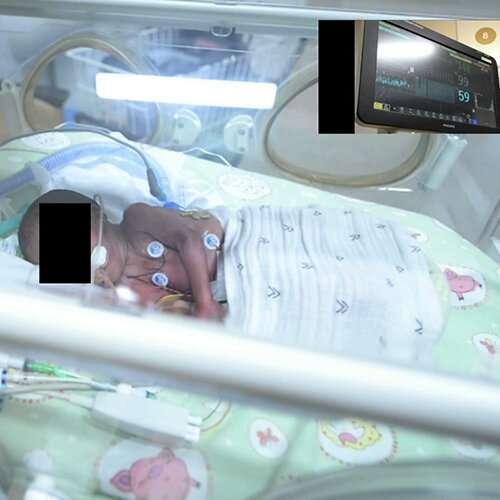 Baby detector software embedded in digital camera rivals ECG
