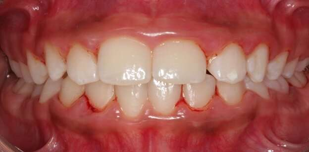Bacteria that cause periodontitis are transmitted from parents to children