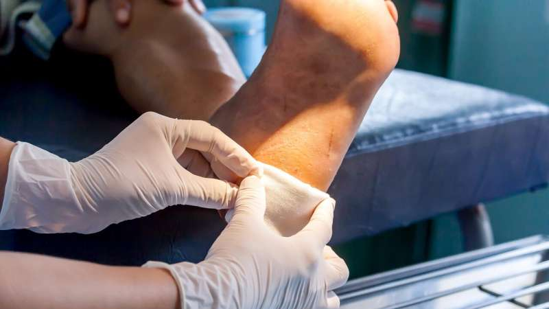 Biosensors embedded in bandages could monitor diabetic foot wounds to prevent amputations