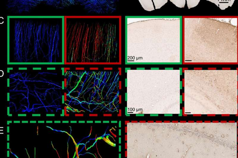 Brain injury computer models map brain blood vessels in highest resolution yet