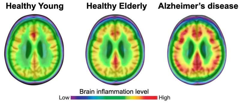 Brain tissue inflammation is key to Alzheimer's disease progression