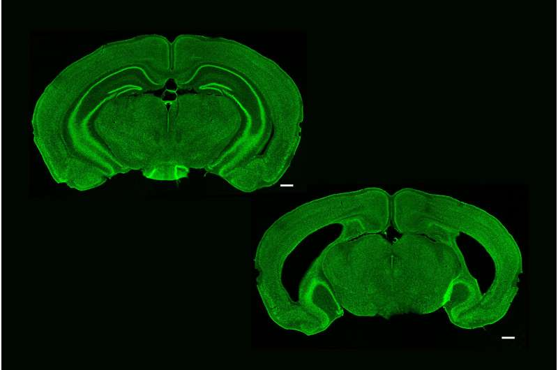 Brain's 'memory center' needed to recognize image sequences but not single sights