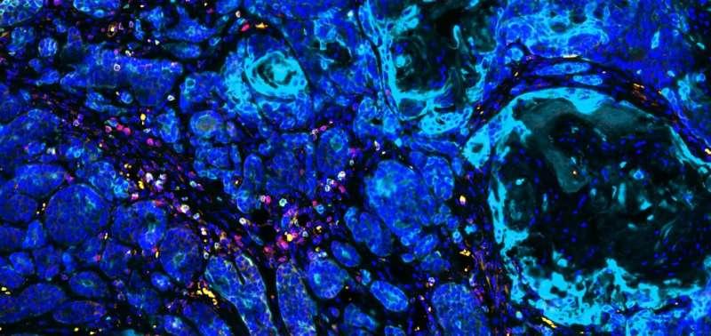 Las células expuestas a carcinógenos proporcionan pistas para combatir los cánceres resistentes al tratamiento