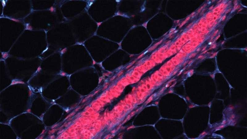 Cataloging breast cells to find cancer origins