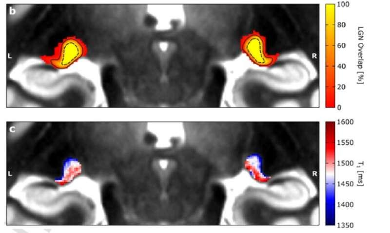 Charting hidden territory of the human brain